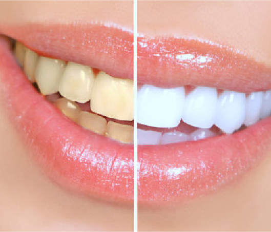 Teeth Whitening Scottsdale, AZ