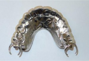 affordable dentures scottsdale