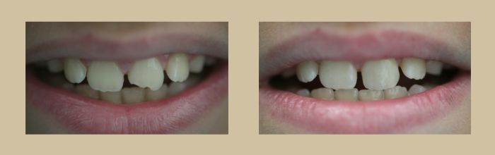 precious-smile-cosmetic3