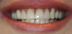 Dental Veneers Scottsdale, AZ